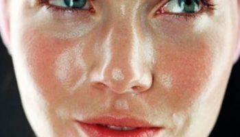 Top 7 kem dưỡng tốt nhất hiện nay dành cho da dầu và da hỗn hợp thiên dầu