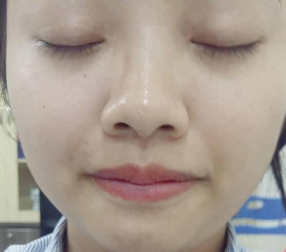 kết quả da mặt sau 2 tháng sử dụng Serum Rosanna tinh chất nhau thai cừu