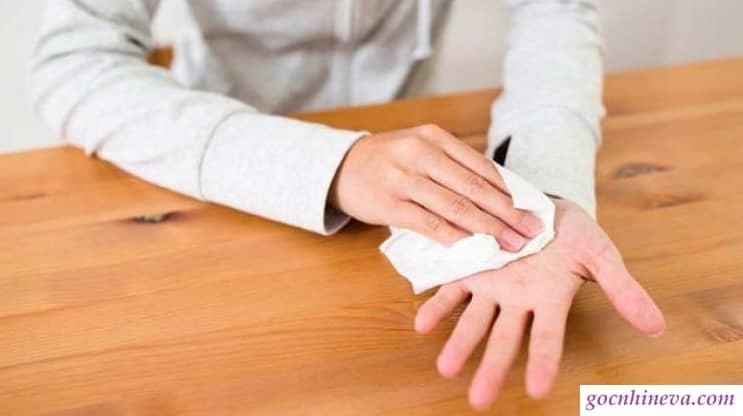 Tình trạng tay chân ra mồ hôi nhiều gây ảnh hưởng đến cuộc sống