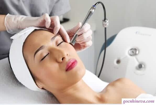 chiếu laser điều trị nám da