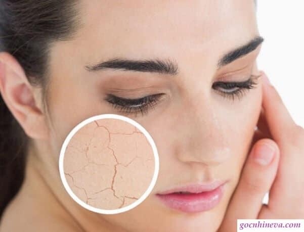 Da khô cần dưỡng ẩm trước khi dùng kem chống nắng