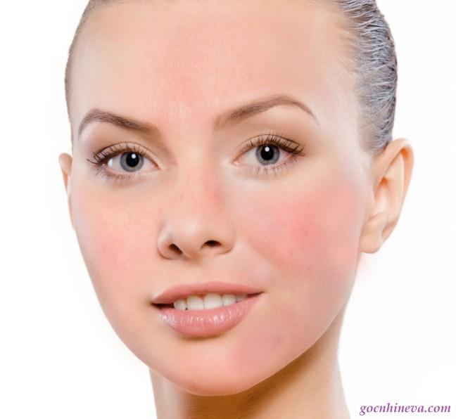 Da nhạy cảm cần được chăm sóc đặc biệt, cẩn thận trong việc lựa chọn kem dưỡng ẩm cho da nhạy cảm