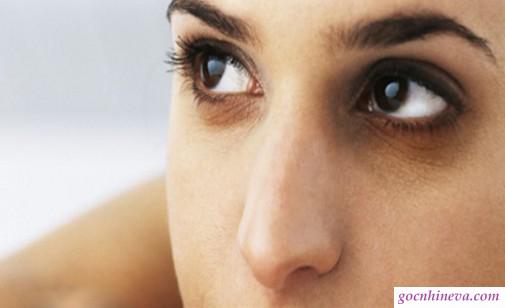 kem dưỡng mắt nào tốt