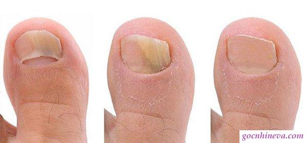 Nấm móng tay chân và cách chữa
