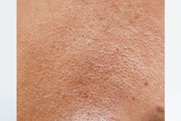 Lỗ chân lông là gì?