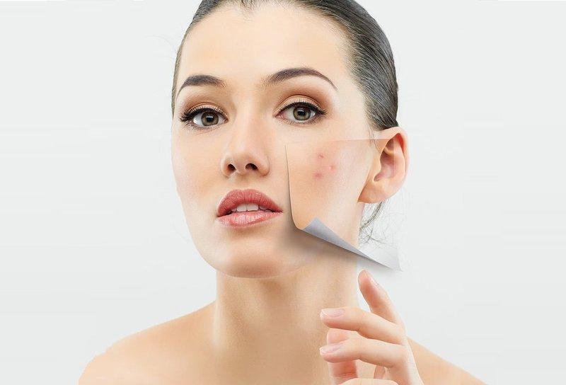 Tại sao dùng mặt nạ trị mụn phải đúng với từng loại da?
