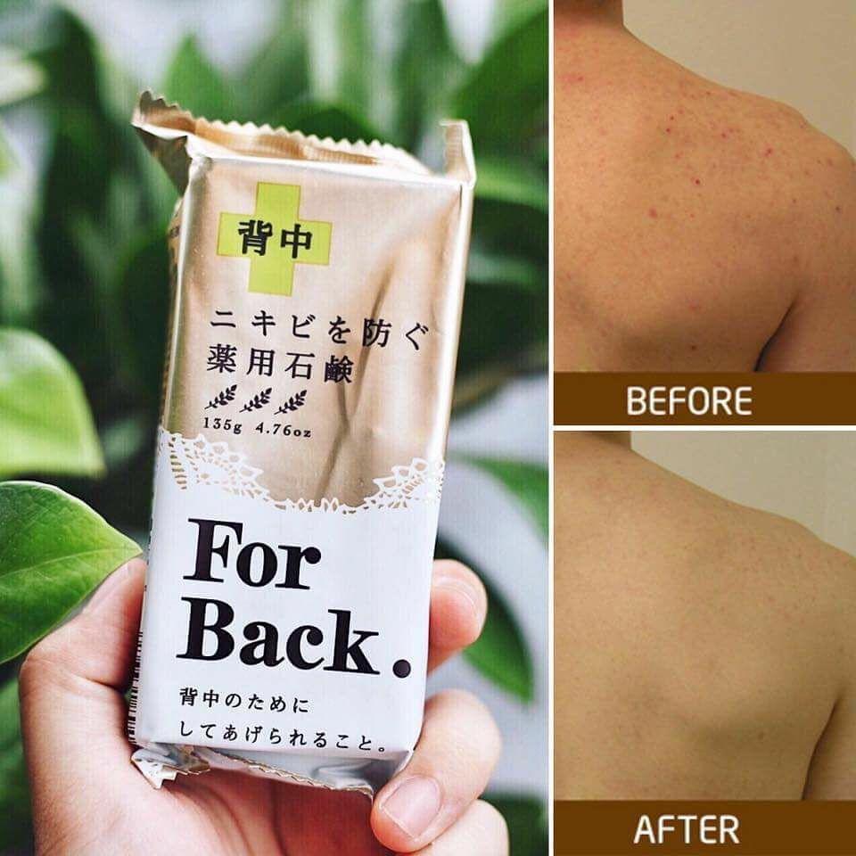 sản phẩm trị mụn lưng