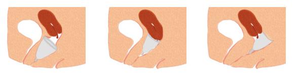 Những câu hỏi thường gặp về cốc nguyệt san