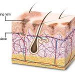 Sắc tố Melanin là gì? Nguyên nhân và cách phòng chống
