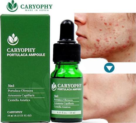 Serum Caryophy cách sử dụng